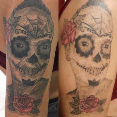 Eliminació de tatuatges a Barcelona- Treure tatuatges a Barcelona