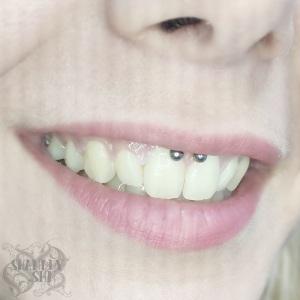 Smiley-piercing-1