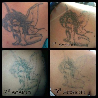 Eliminar tatuajes en Barcelona - Pro-Arts